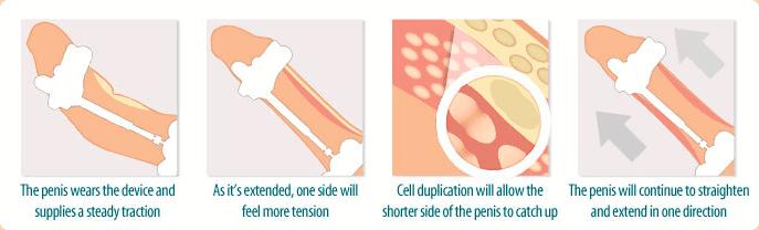 how do penis extenders work