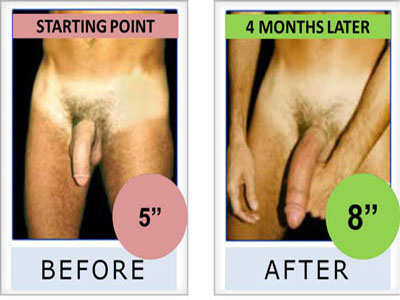 Penis Pump Before And After