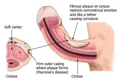 What is Peyronie's Disease